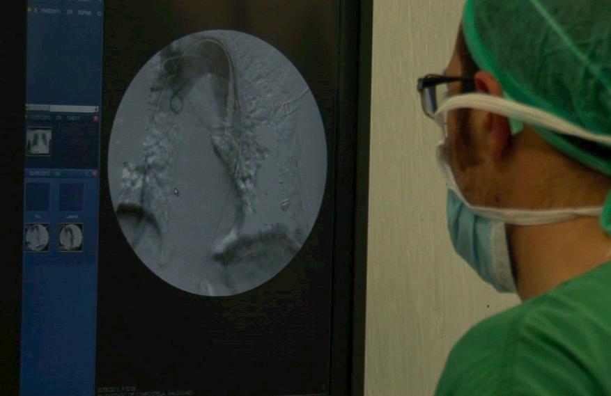 Segunda opinión cirugía vascular